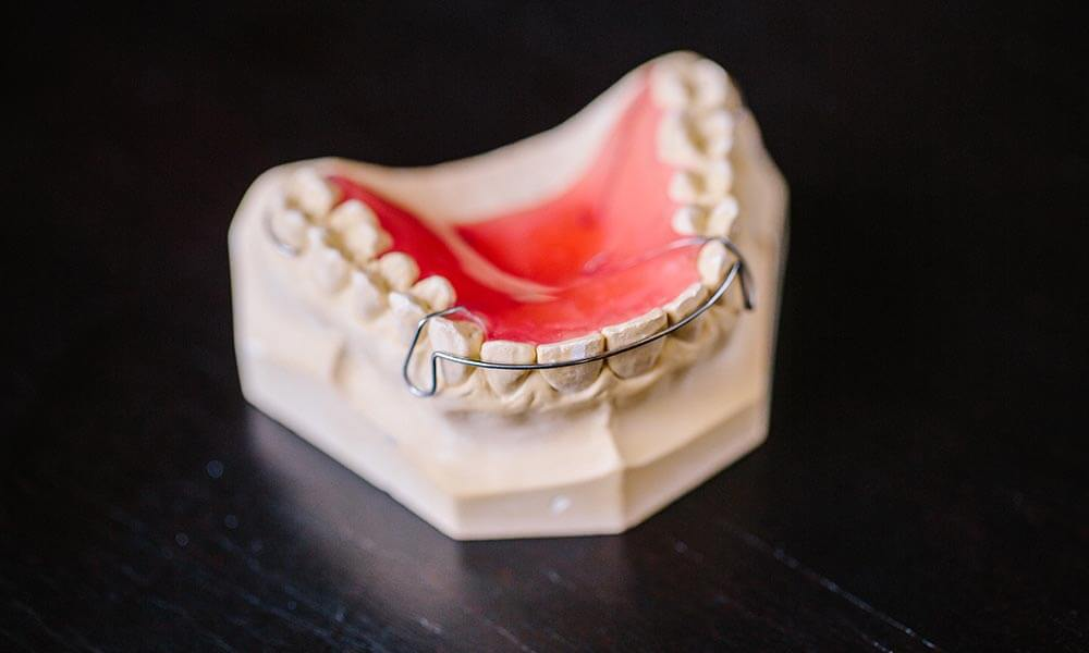 An example of a dental retainer.