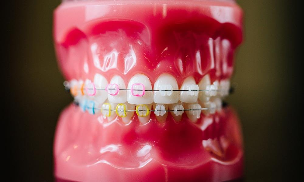 An example of dental metal braces.
