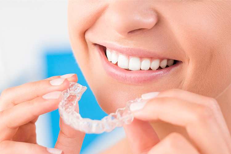 Closeup of a woman smiling as she puts in her Invisalign trays to straighten her teeth in Fayetteville, AR